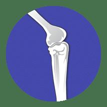 Corazon Orthopedic Program